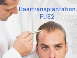 Haartransplantation FUE Kosten in Budapest, Ungarn