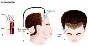 Haarimplantation