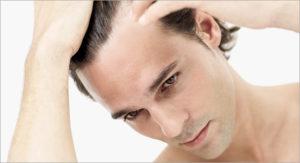 Haarausfall und Glatze: Haartranplantation ist die Lösung