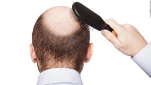 Die Glatze - Haartransplantation ist die einzige und billige Lösung